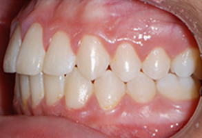 Orthodontic treatment after